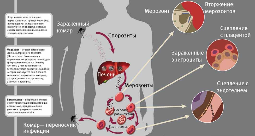 Печеночный сосальщик: симптомы заражения человека